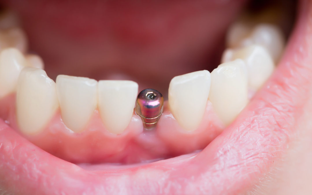 Say Cheese! What Are the Top Benefits of Dental Implants?