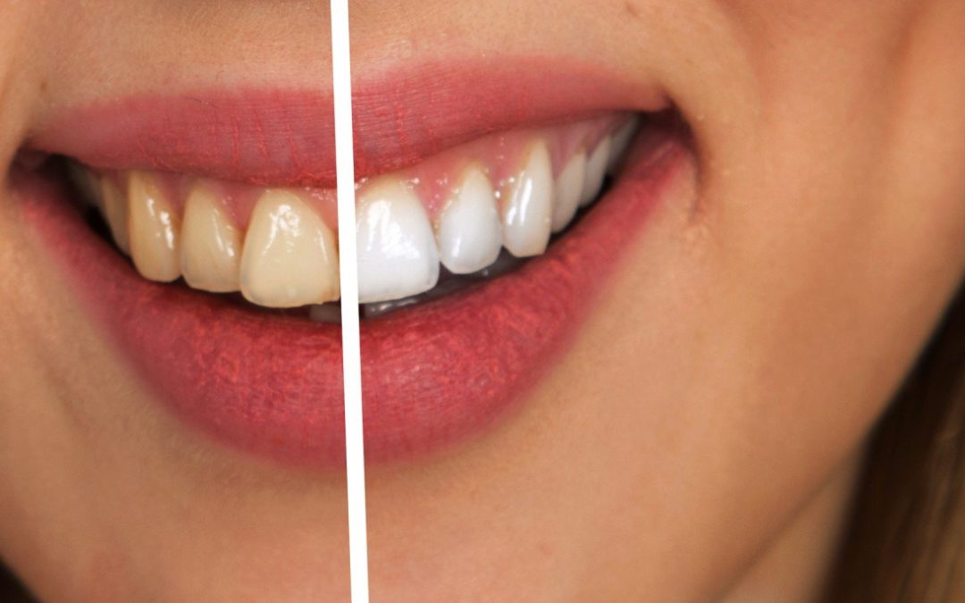 What Is Esthetic Dentistry?