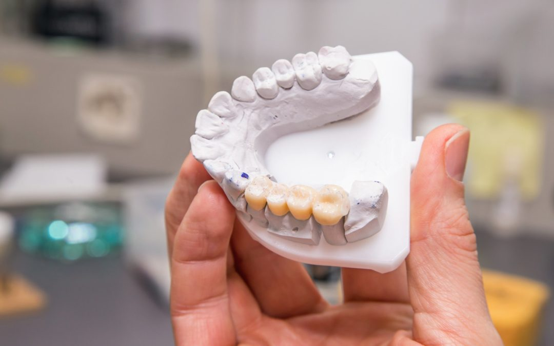 A Guide to the 4 Types of Dental Bridges