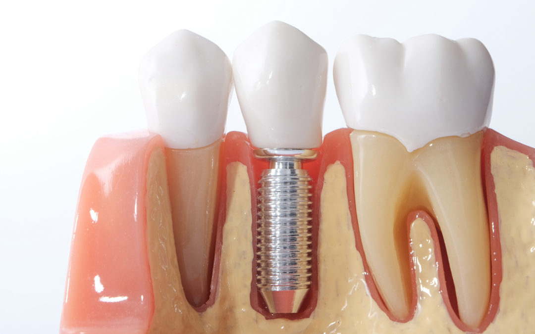 A Guide to the Best Candidate for Dental Implants
